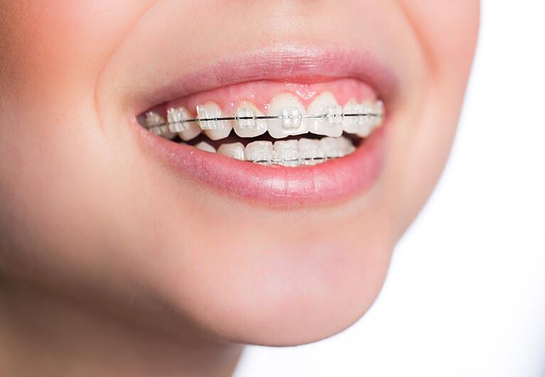 小児矯正歯科治療